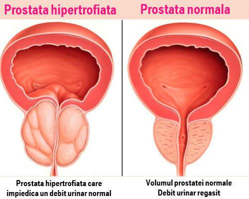 Cum afectează tratamentul prostatitei erecția?)