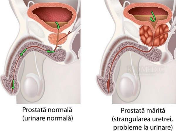 Potență și prostată | bijumagazin.ro